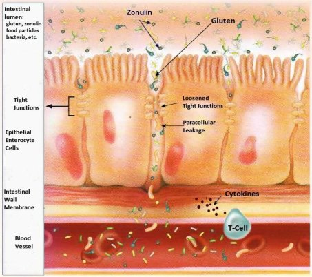 Zonulin-and-Gut-Integrity