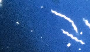 spiroketbild