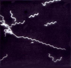 spiroplasma